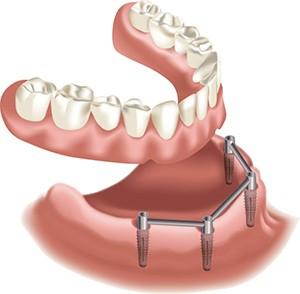 Implantáció