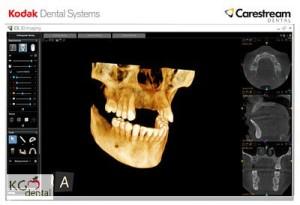 3DCT -Röntgen