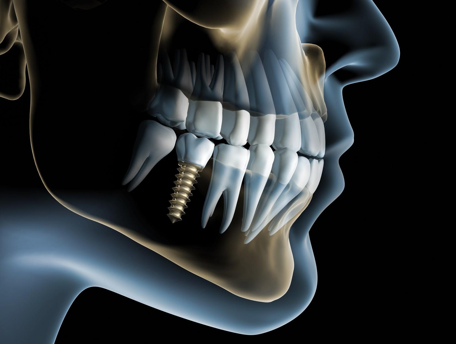 KG dental rendelő
